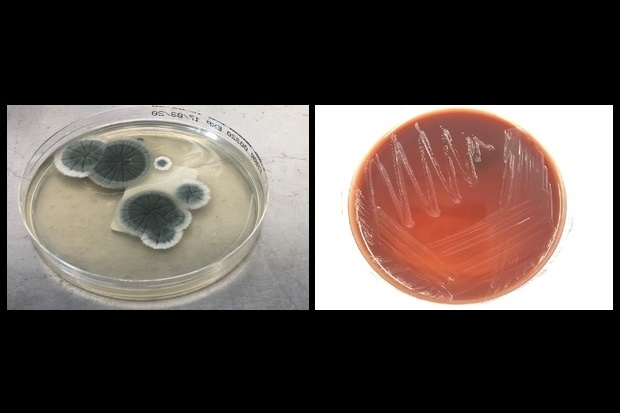 Image showing two agar plates. The one to the left contains two clusters of a dark grey culture. The one to the right shows streaks of white across a red culture medium.